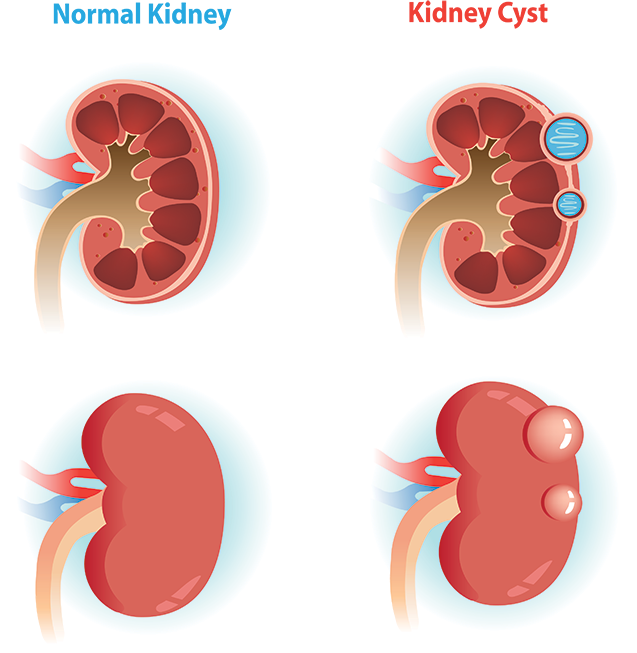 Comparison of Normal Kidney verse a Kidney with a Cyst
